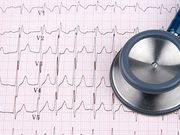 AHA: Care for Type 2 Myocardial Infarction Patients Varies