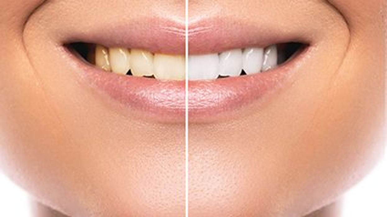 picture showing teeth whitening