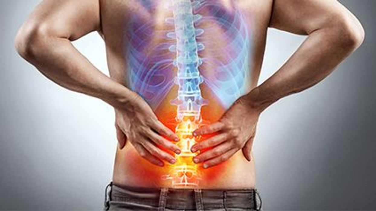 back pain picture