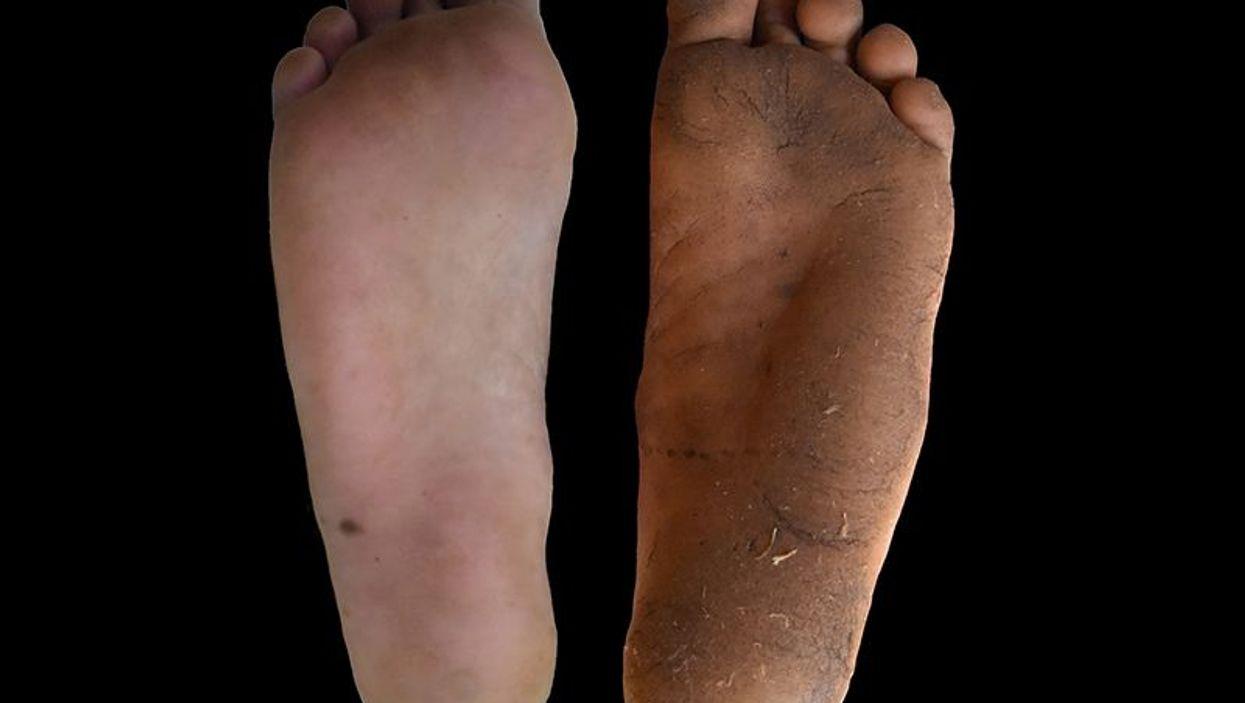 Shoe-wearing (left) vs. regularly barefoot sole. Photo: D. Lieberman