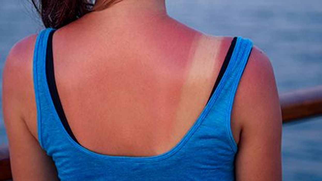 sunburn on the girl\'s back