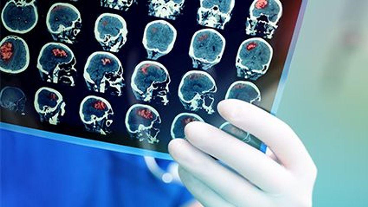 head scans images