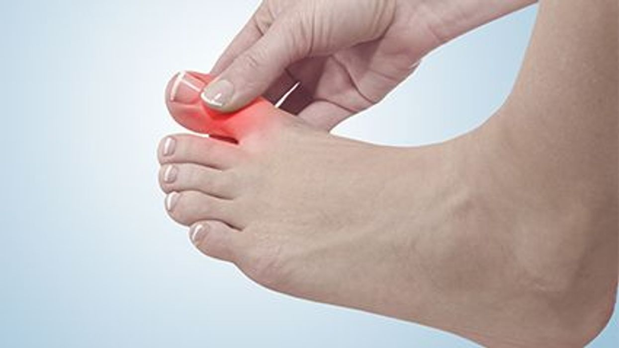 a foot with a red painful toe