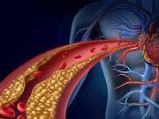 Le risque d'IM et de MCA est plus élevé chez les adultes plus âgés ayant un taux élevé de cholestérol LDL