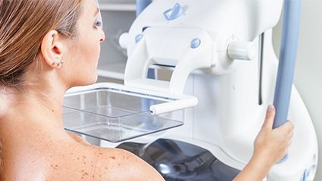 a woman during mammogram scan
