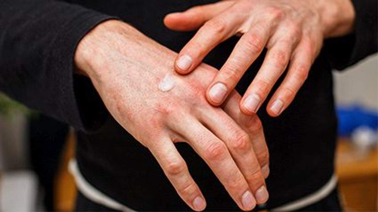 a person\'s hands with a cream on them