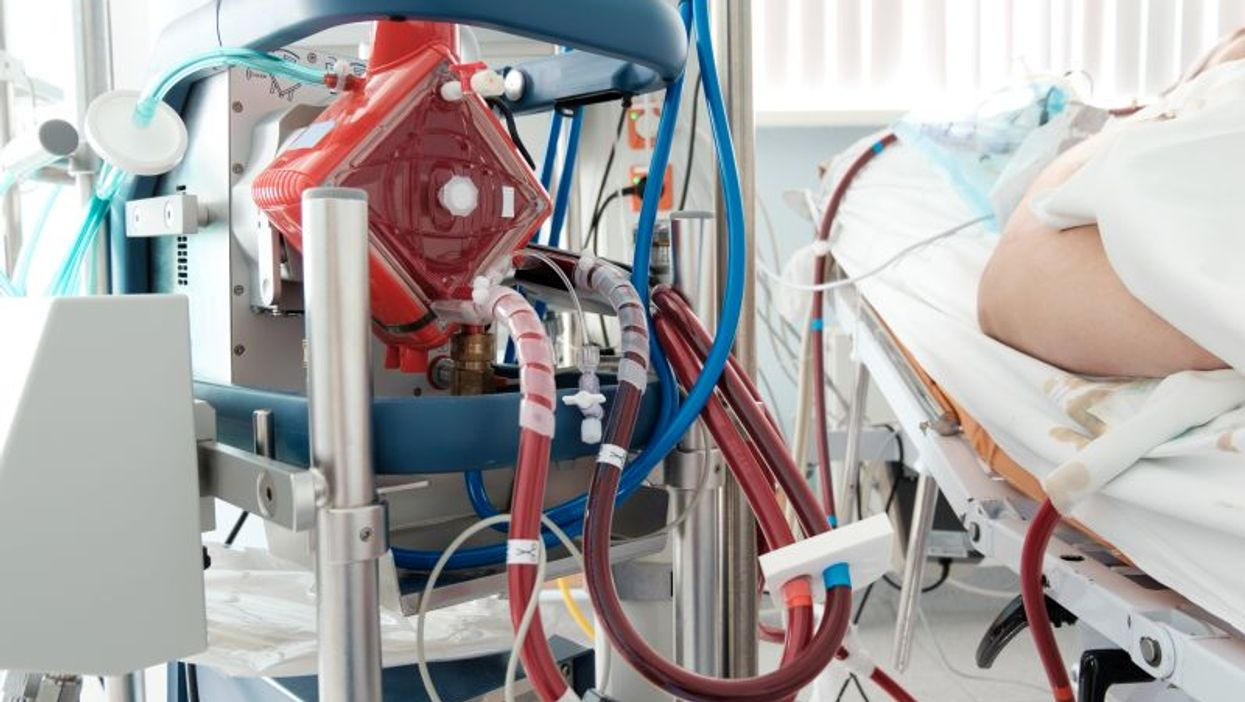 ECMO at work in an ICU