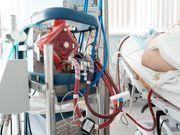 Frühe ECMO-erleichterte Reanimation verbessert Überlebenschancen bei OHCA