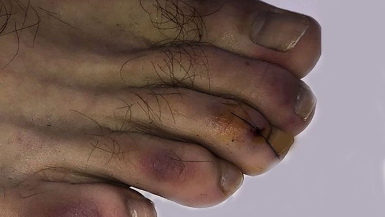 Covid-19 toes