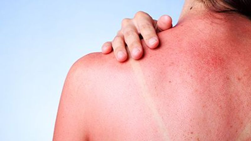 Even Winter Carries Skin Cancer Risks for College Students