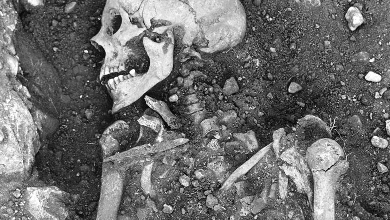 1,200-year old Viking skeleton with signs of smallpox
