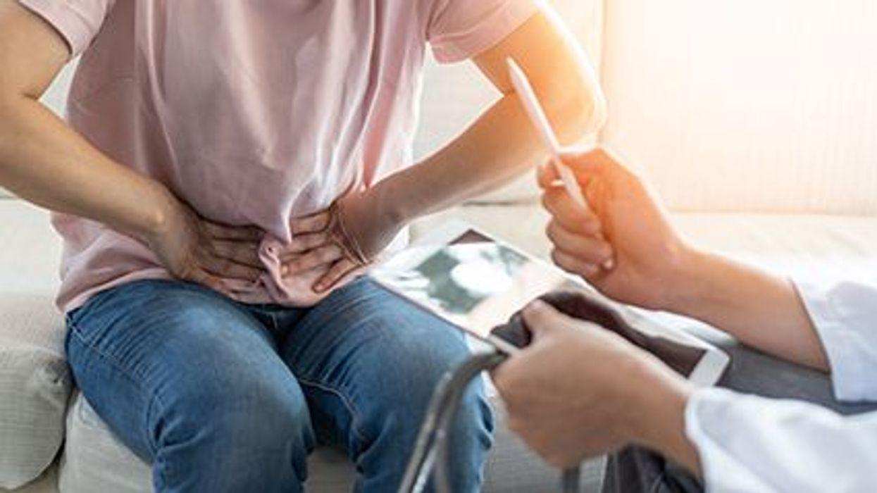 Se han hallado anormalidades intestinales graves en pacientes con el COVID-19