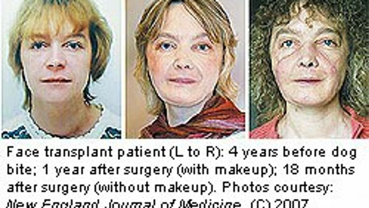 Partial Face Transplant Patient Doing Well
