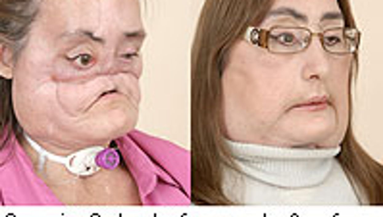 Face Transplant Patient Can Smell, Taste, Breathe Normally