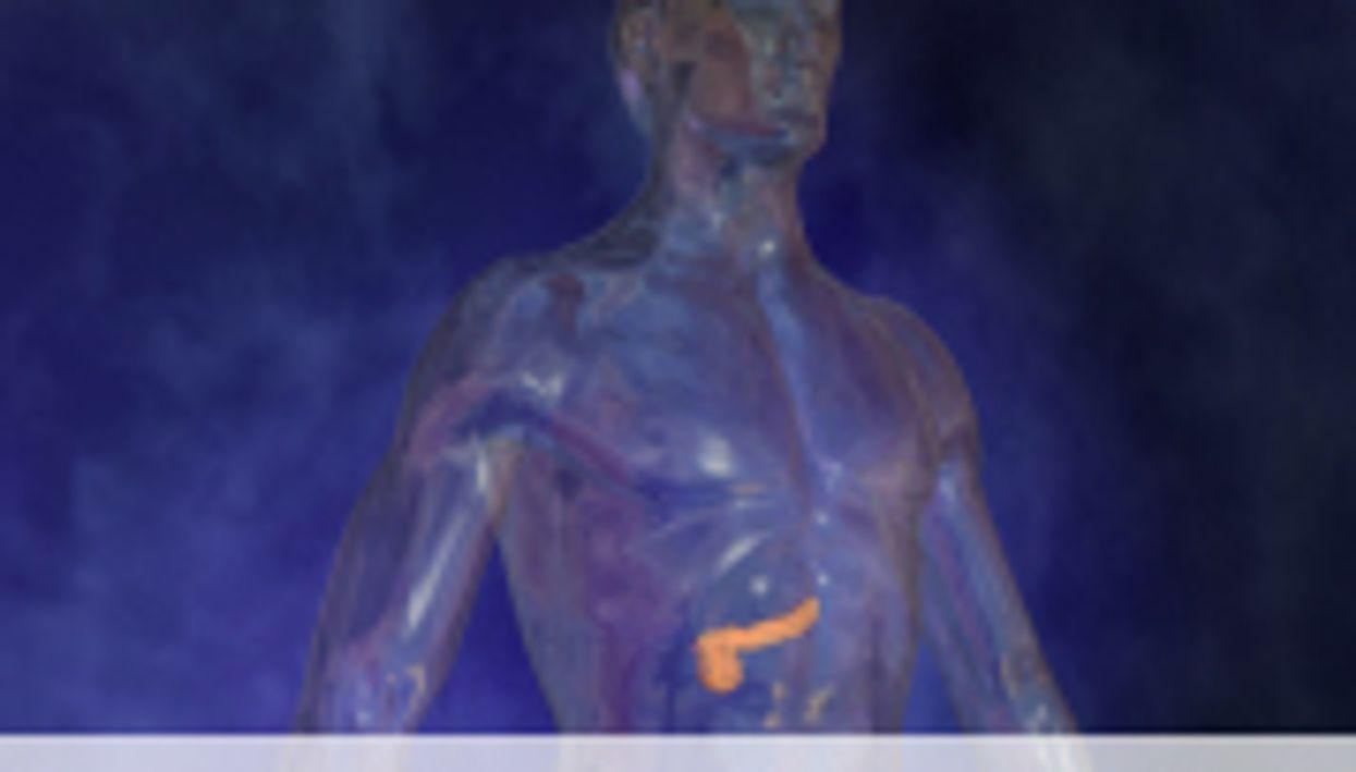 Chronic Pancreatitis Ups Risk of Cancer Death