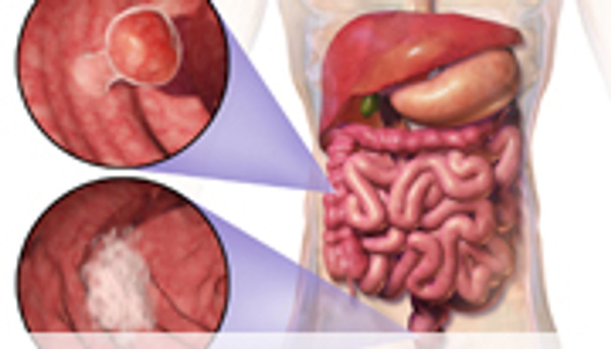 Similar Genetic Alterations in Most Colon, Rectal Cancers