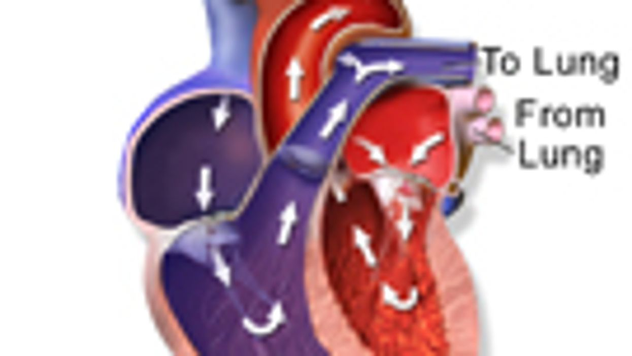 Study Finds Link Between Heart Failure, Brain Changes