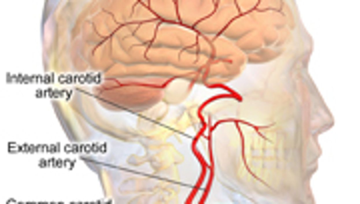 Stenting, Surgery Appear Comparable for Opening Neck Artery