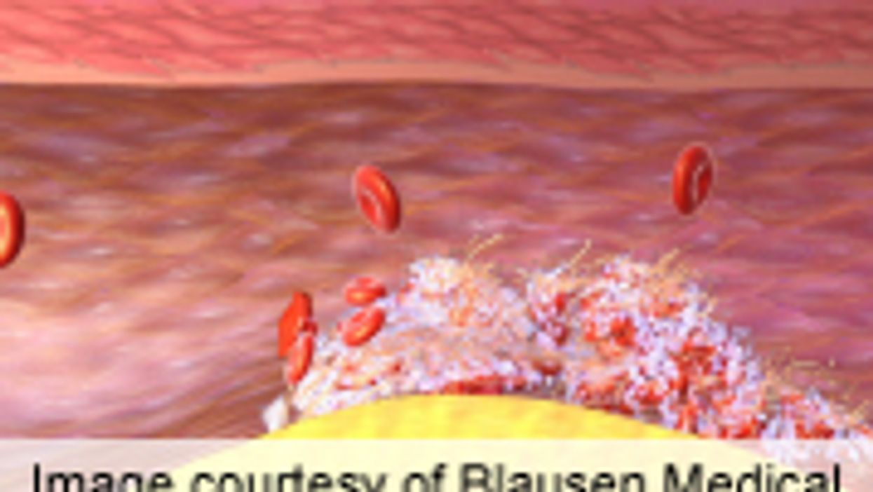 Non-Vitamin K Oral Anticoagulants Vary in Assay Effects