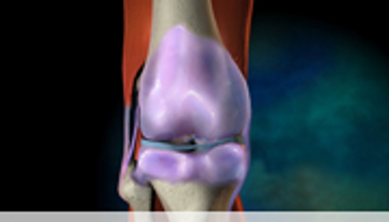 Obesity Explains More Rapid Growth Rate of Knee Replacement