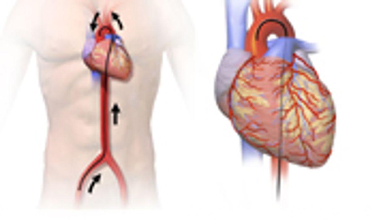 Aspirin, Warfarin Fare Equally for Heart Failure Patients