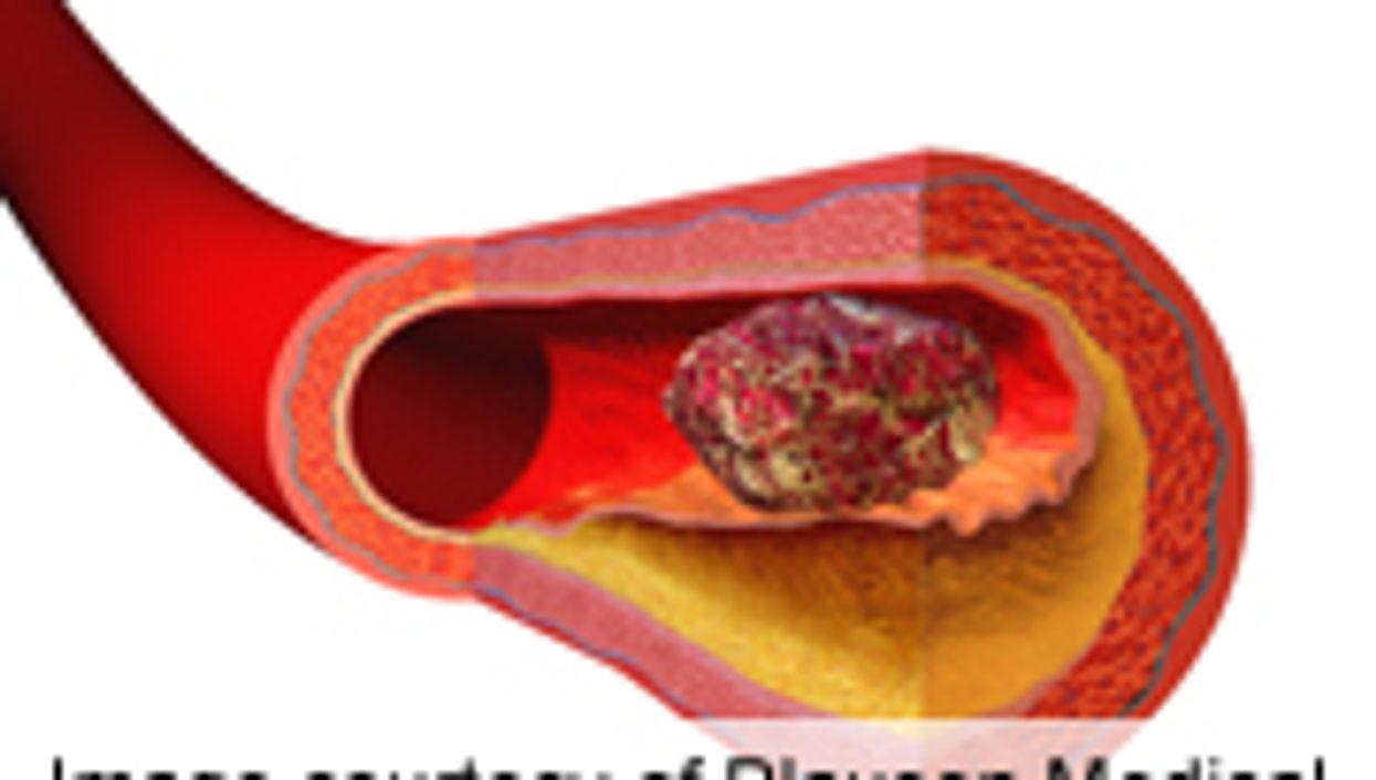 AHA: Edoxaban Noninferior to Warfarin for Stroke Prevention