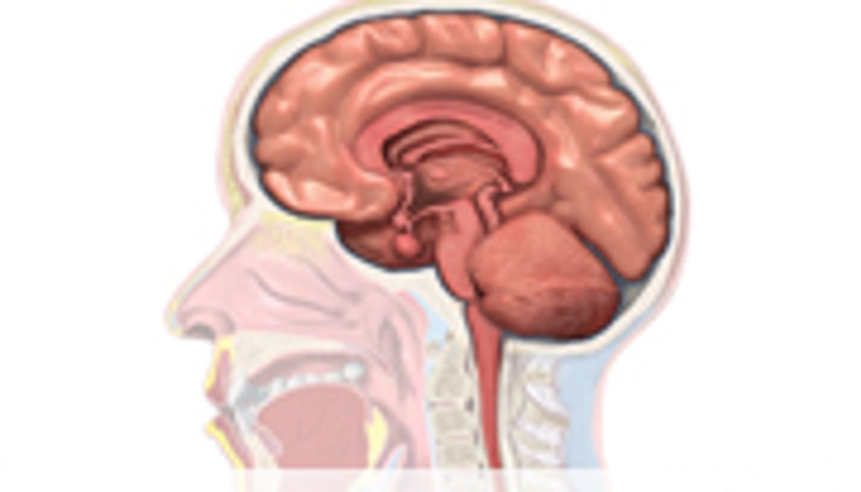 Study Sees Differences in Brain Connections of Kids With ADHD
