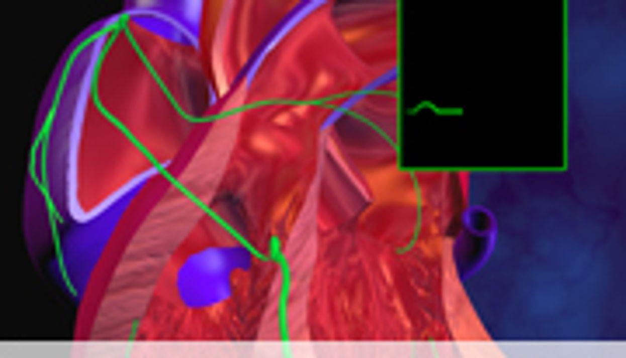 Palpitations May Signal Future Heart Rhythm Problem
