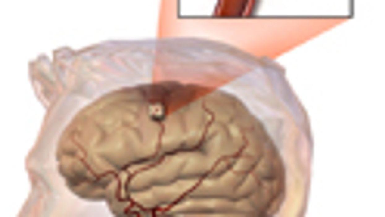 PTSD Can Hamper Drug Treatment for Stroke Survivors: Study