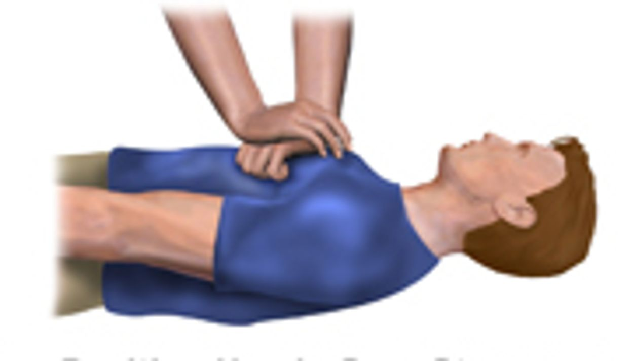 Study Supports CPR Chest Compressions for Cardiac Arrest