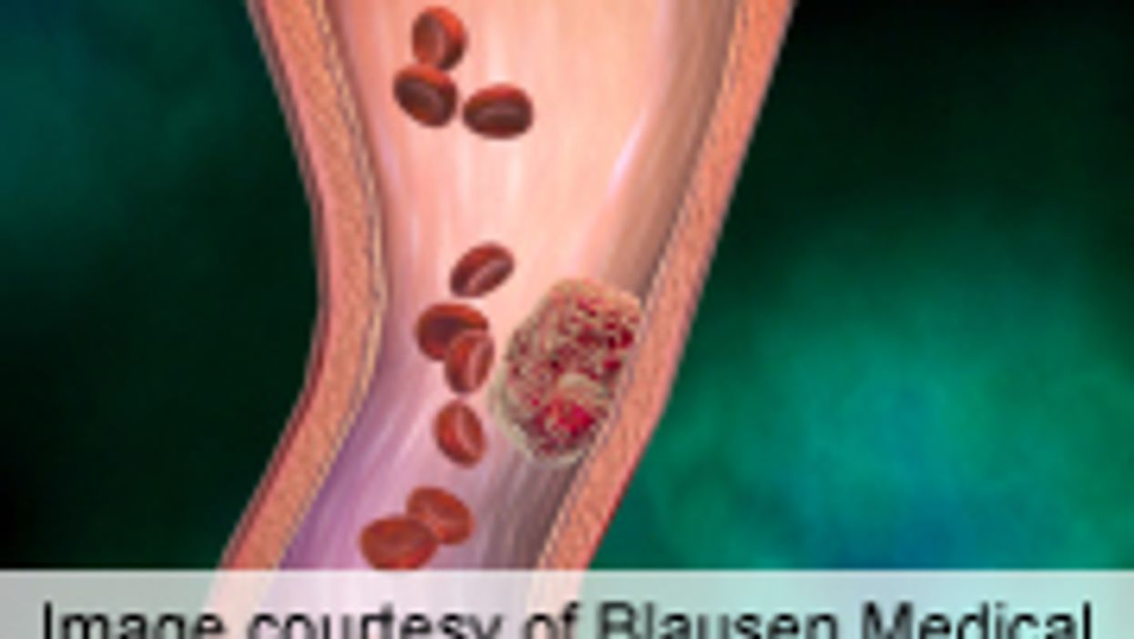 Study Clarifies LMWH Treatment for Cancer-Related DVT