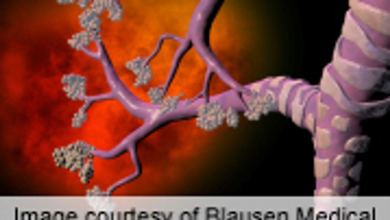 Handling of Confounding in Diet and Asthma, Allergy Studies Poor