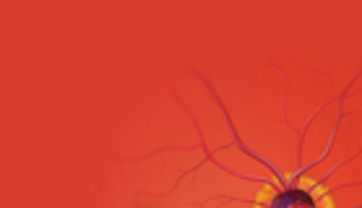 Eye Photography May Reveal Stroke Risk, Study Finds