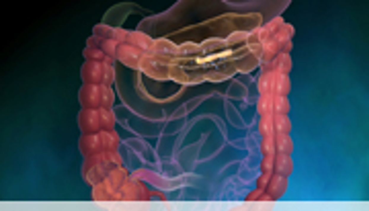 Laxative Type Might Influence Colorectal Cancer Risk
