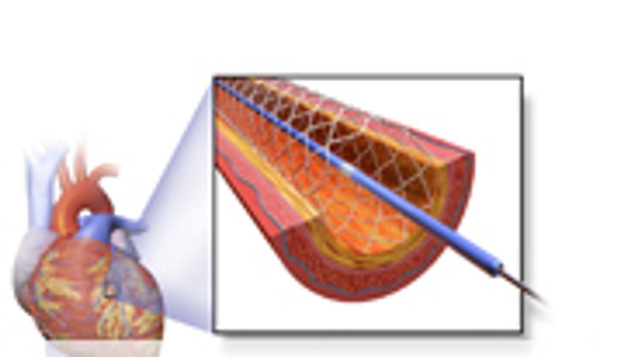 No Benefit for Stent Versus Medical Therapy in Stable CAD