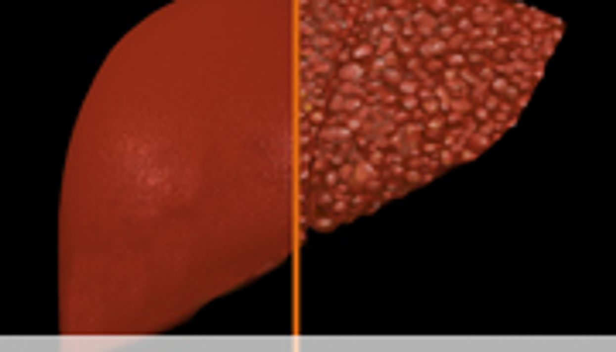 Ultrasound IDs Post-Transplant Recurrent Hep C Cirrhosis