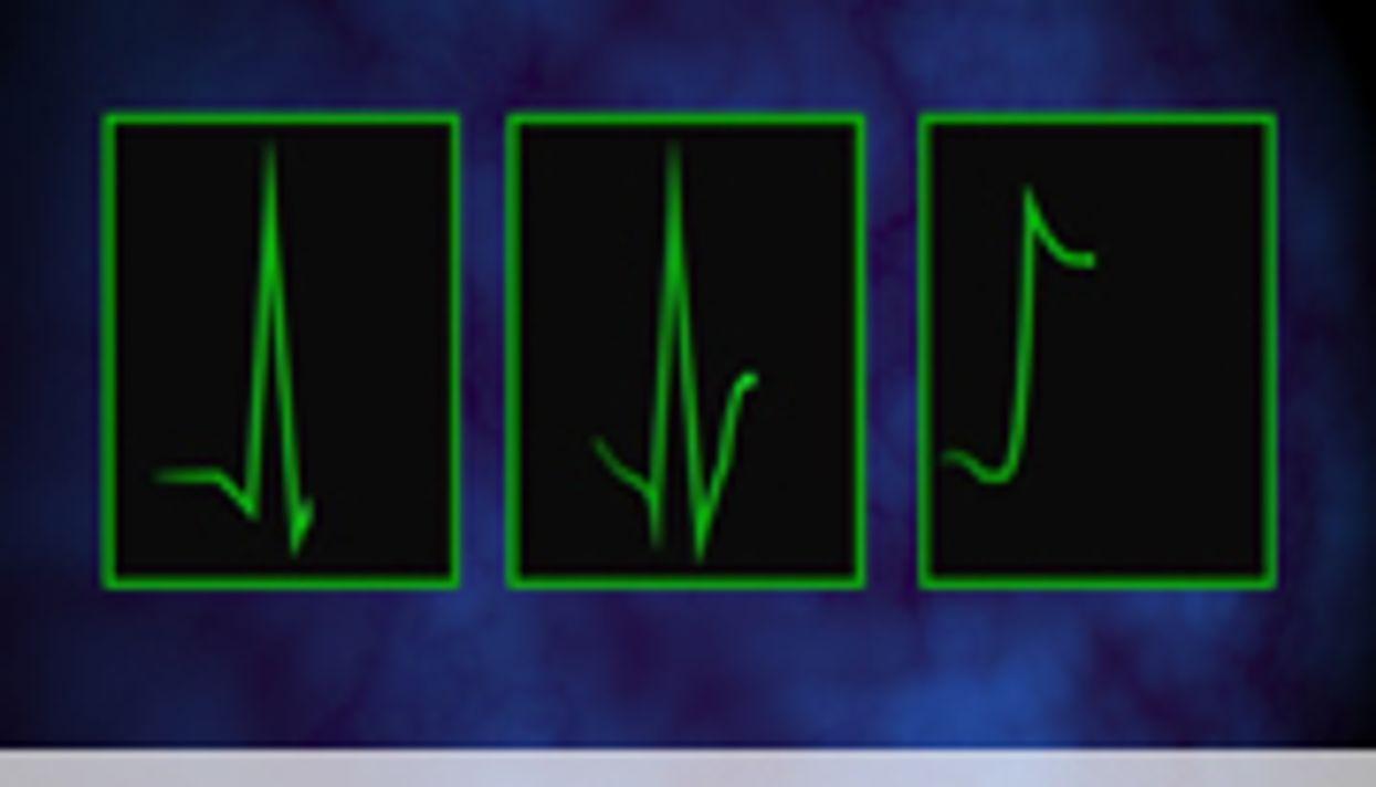 Coronary Artery Spasms Rare During Dobutamine Stress Echo