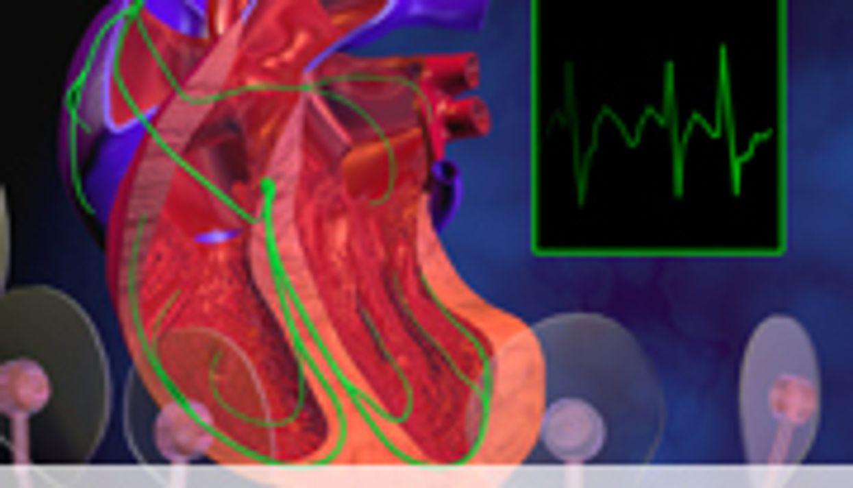 Hemorrhage Rates Highest Within 30 Days of Warfarin Tx