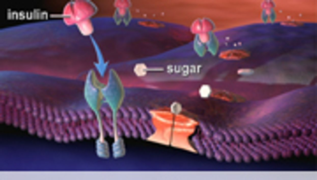 Advanced Glycation Products in Diet Tied to Insulin Resistance
