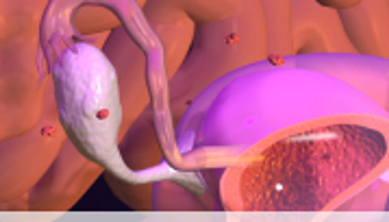 Pesticide Exposure Linked to Endometriosis Risk