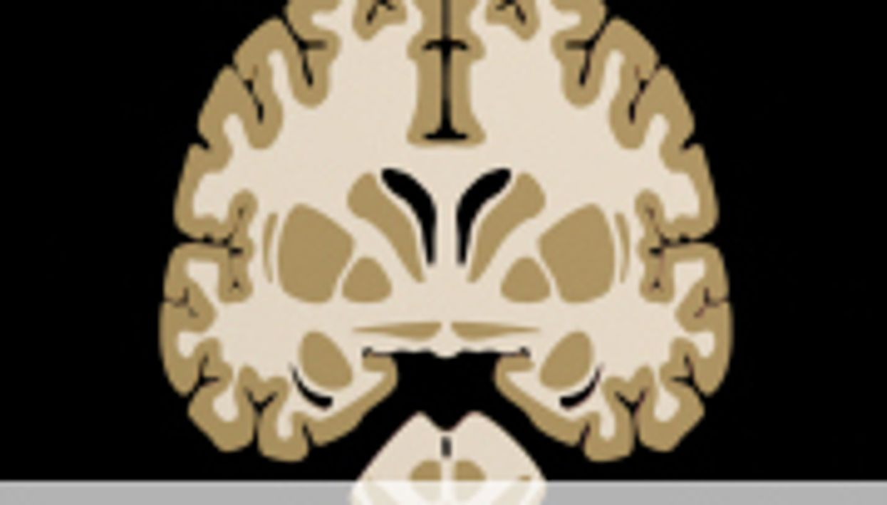 Soccer Players Have Alterations in White Matter Integrity
