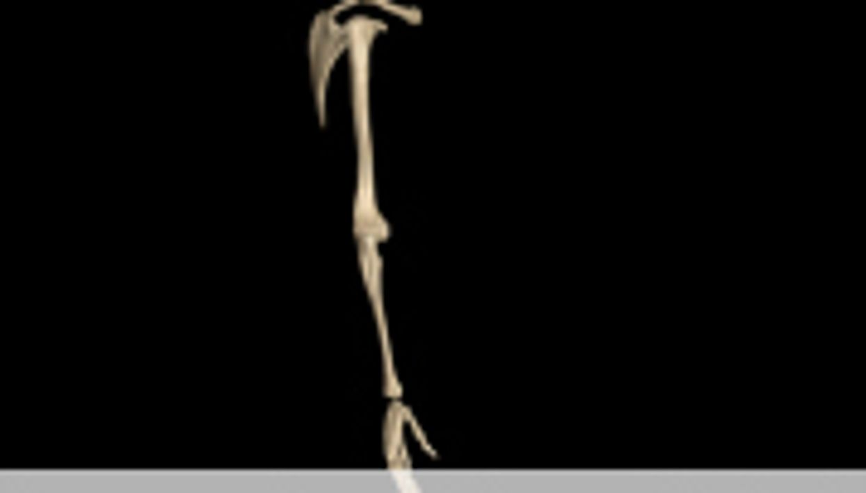 Inadequate Pain Meds in ER for Patients With Long-Bone Fx