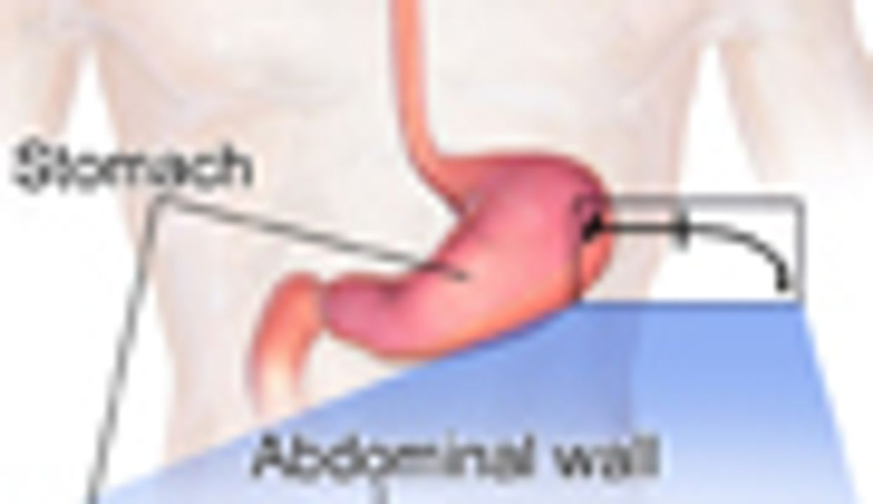 Type of Attending Doc Affects Feeding Tube Rates in Elderly