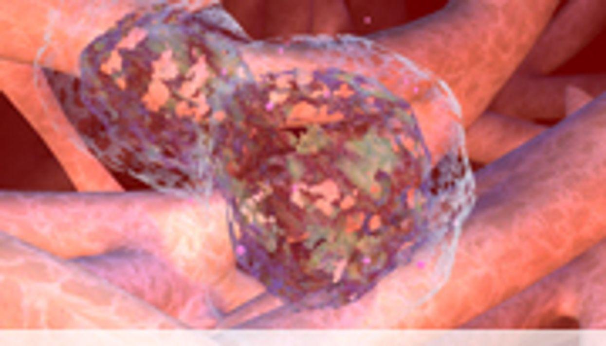 ASCO: For Chemo's Nausea, Olanzapine Beats Metoclopramide