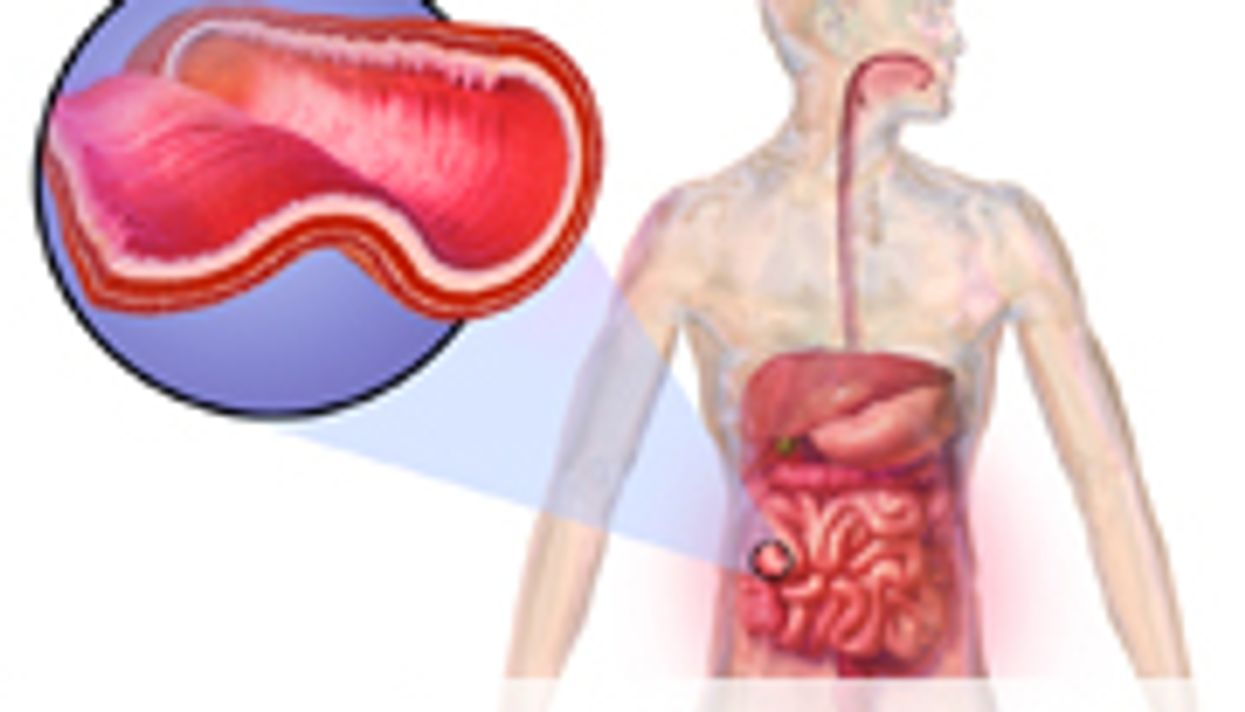 Isotretinoin Not Linked to Increased Risk of IBD