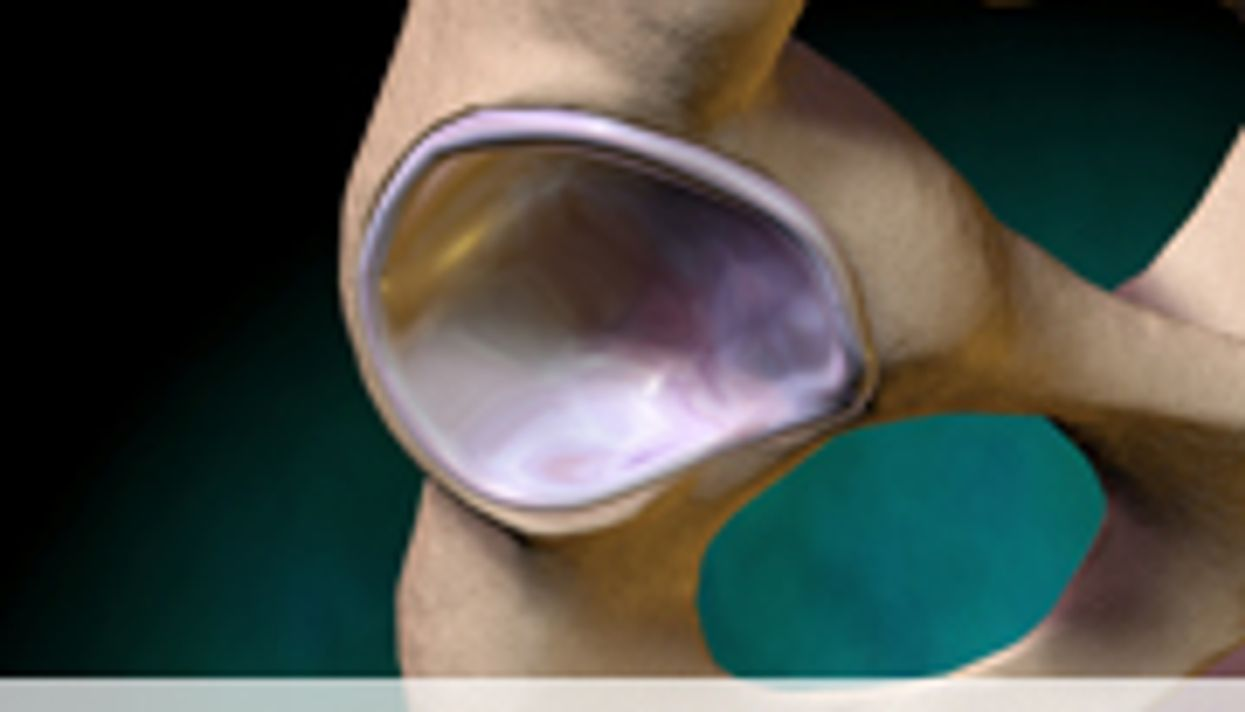Hip Replacement Outcomes Similar With/Without Cement