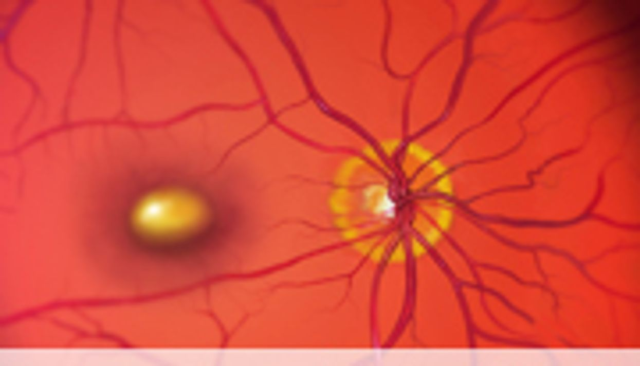 Supplement Aids Age-Related Macular Degeneration