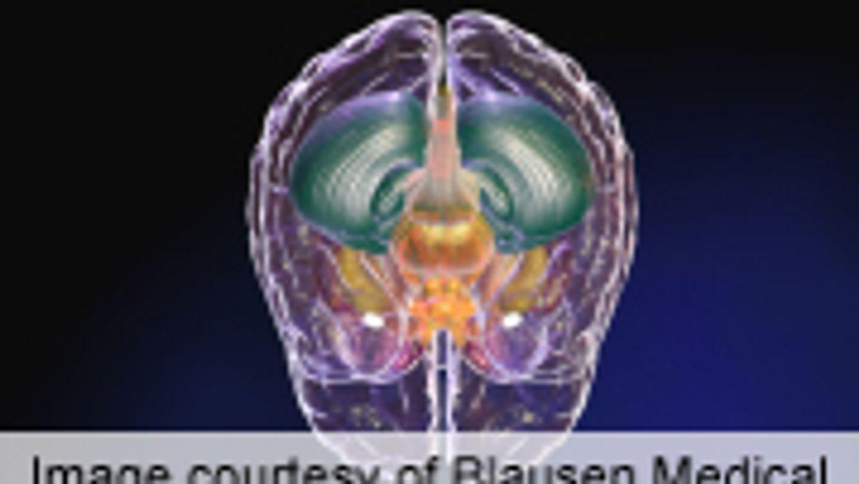 Deep Brain Stimulation Could Treat Obesity