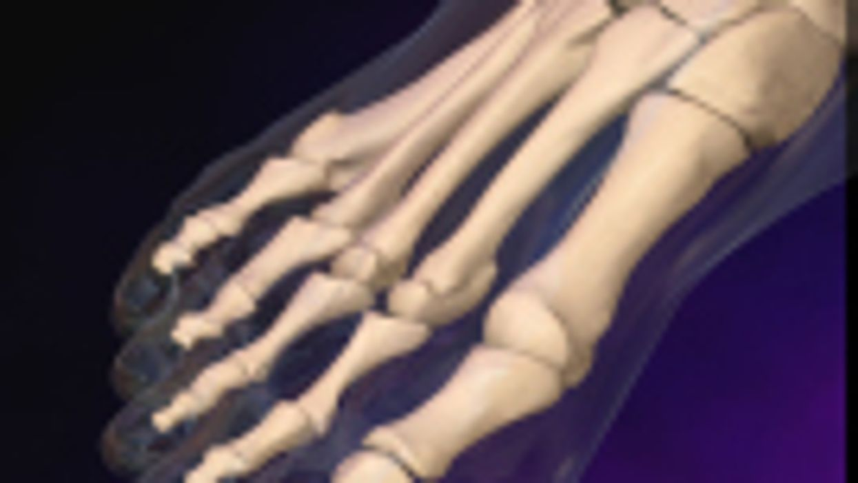 ACR: Most Hospitalizations for Gout Are Preventable