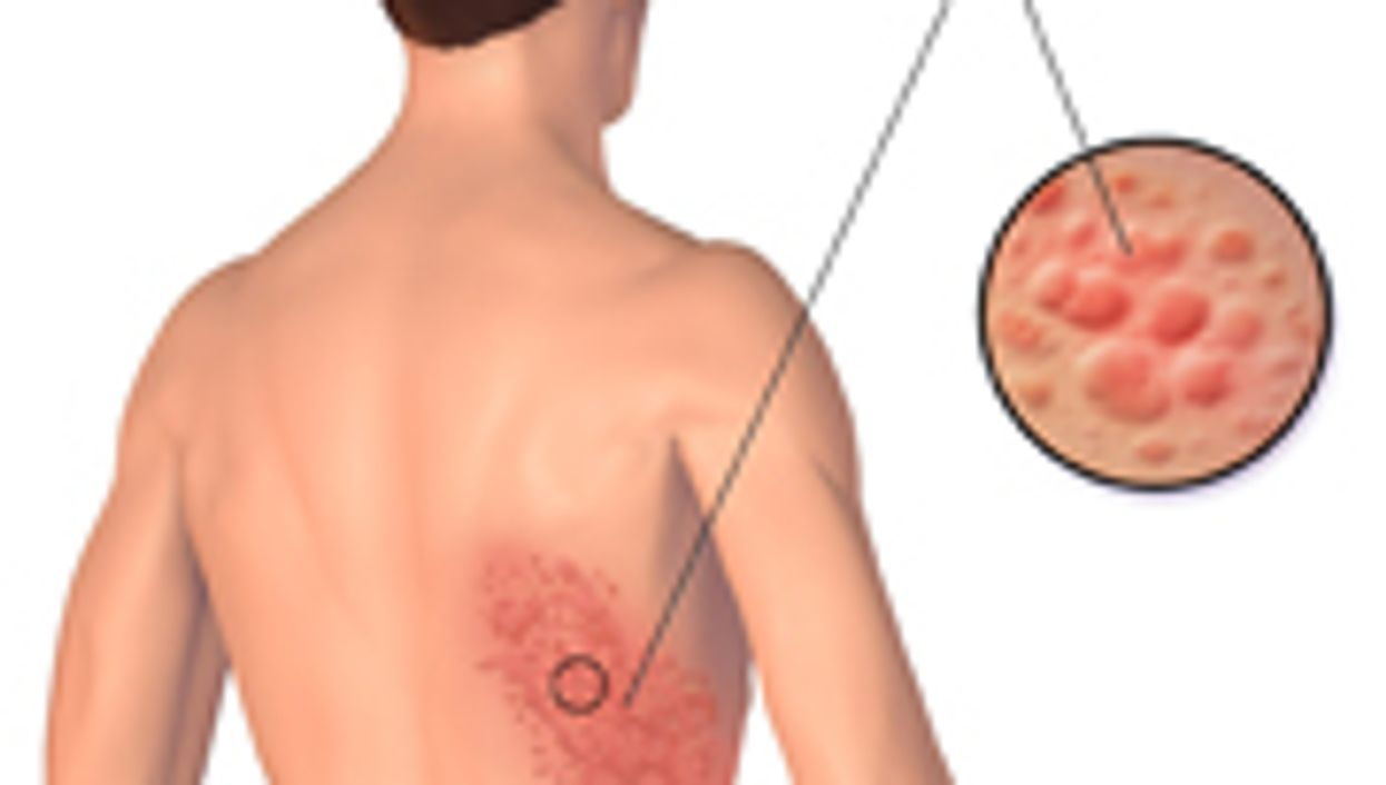 Stroke Risk May Be Elevated After Herpes Zoster Infection